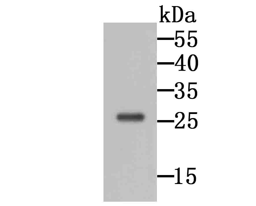 Western blot analysis of GRB2 on 293 cell lysate using anti-GRB2 antibody at 1/1,000 dilution.