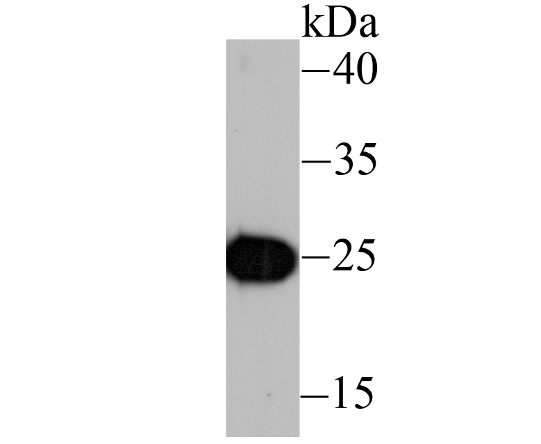 Western blot analysis of IL6 on recombinant protein lysate using anti-IL6 antibody at 1/1,000 dilution.