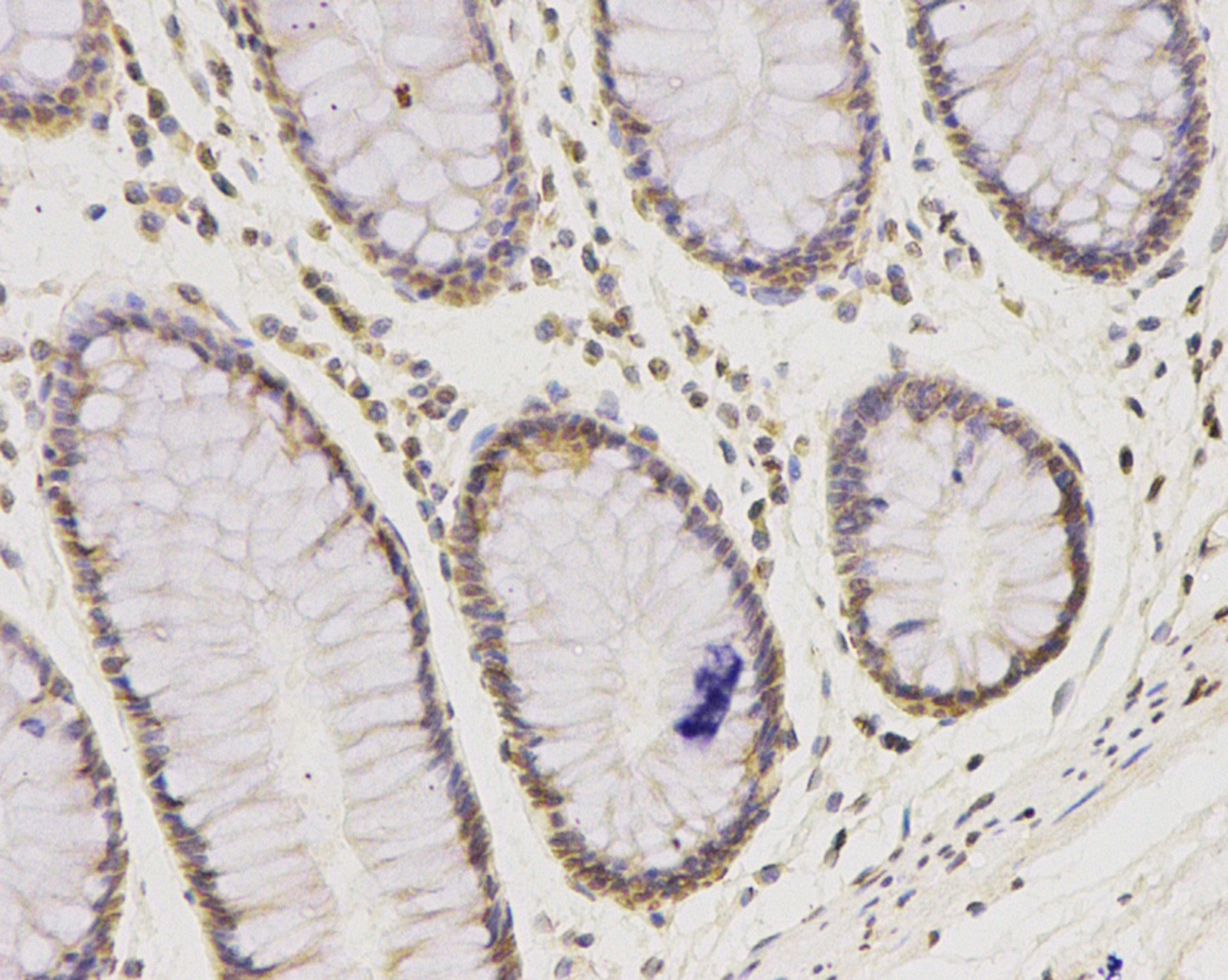 Immunohistochemical analysis of paraffin-embedded human colon tissue using anti- IFNAR1 antibody. Counter stained with hematoxylin.