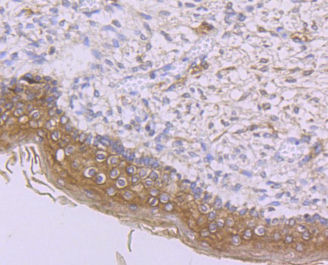 Immunohistochemical analysis of paraffin-embedded human skin tissue using anti- IFNAR1 antibody. Counter stained with hematoxylin.