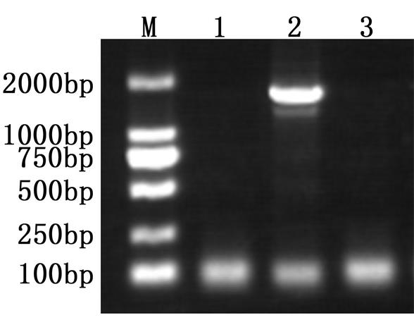 Application of the hot start PCR using anti-Taq DNA Polymerase antibody<br />   Lane 1: Taq DNA Polymerase<br />   Lane 2: Taq DNA Polymerase + Anti-Taq DNA Polymerase antibody<br />   Lane 3: Taq DNA Polymerase + Control antibody