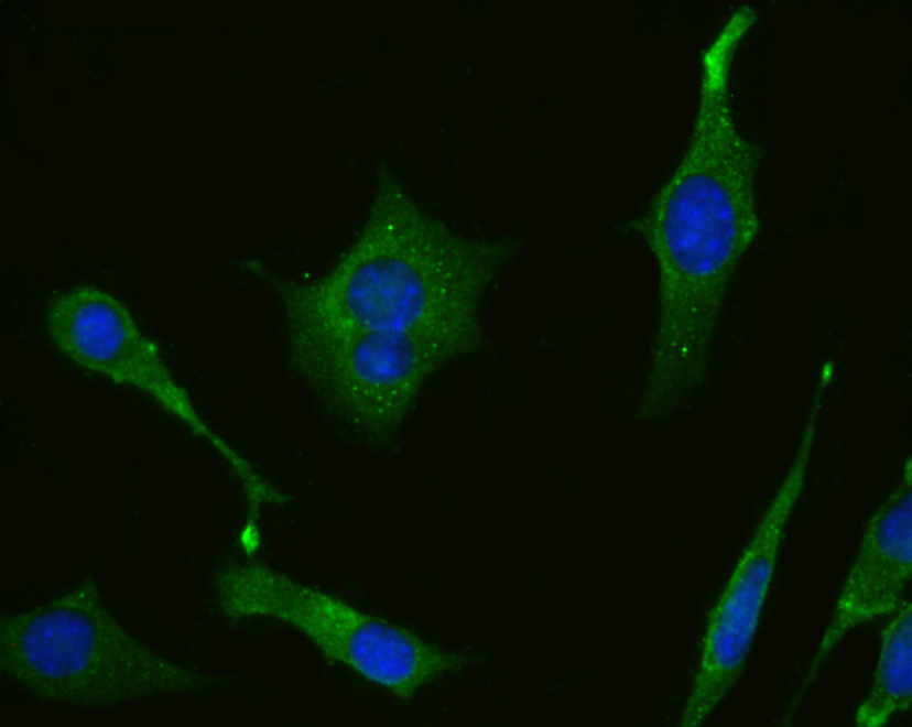 ICC staining Monoamine Oxidase A in SH-SY-5Y cells (green). The nuclear counter stain is DAPI (blue). Cells were fixed in paraformaldehyde, permeabilised with 0.25% Triton X100/PBS.
