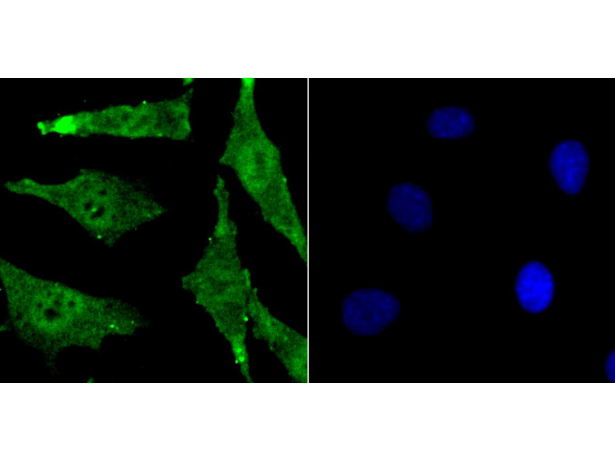 ICC staining Bmi1 (green) in SH-SY-5Y cells. The nuclear counter stain is DAPI (blue). Cells were fixed in paraformaldehyde, permeabilised with 0.25% Triton X100/PBS.