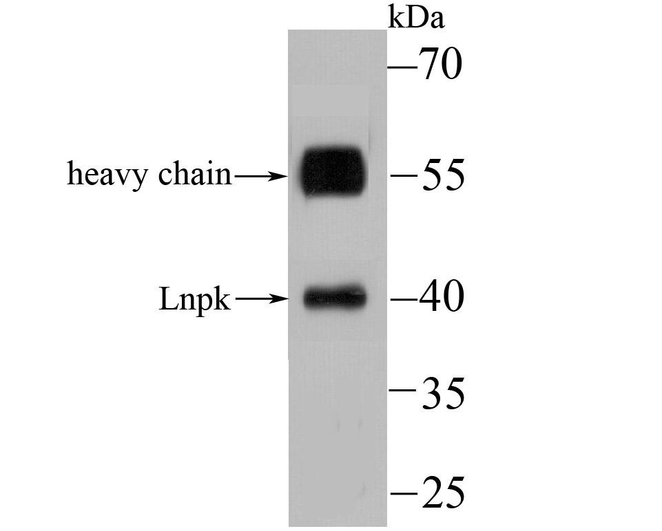 Western blot analysis of Lnpk on mouse brain tissue lysate using anti-Lnpk antibody at 1/100 dilution.