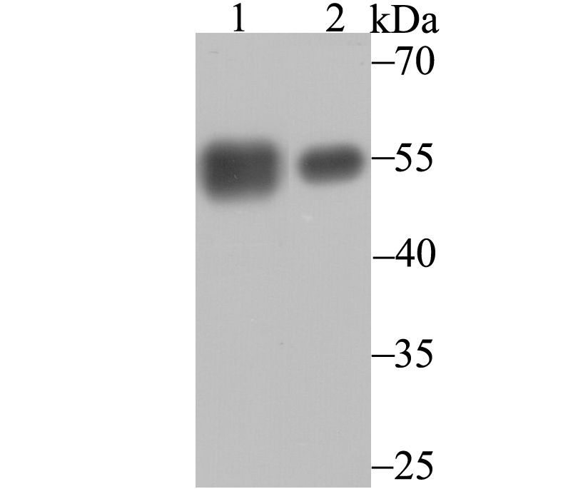 Western blot analysis of Calreticulin on HL-60 (1) and A431 (2) cell lysates using anti-Calreticulin antibody at 1/1,000 dilution.