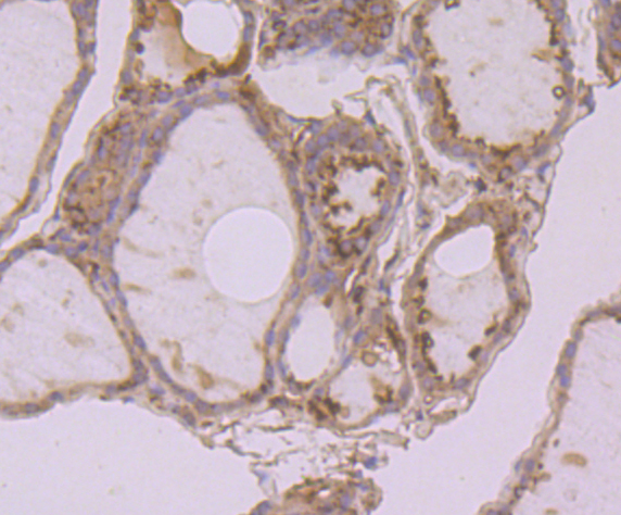 Immunohistochemical analysis of paraffin-embedded human thyroid gland tissue using anti-Calreticulin antibody. Counter stained with hematoxylin.