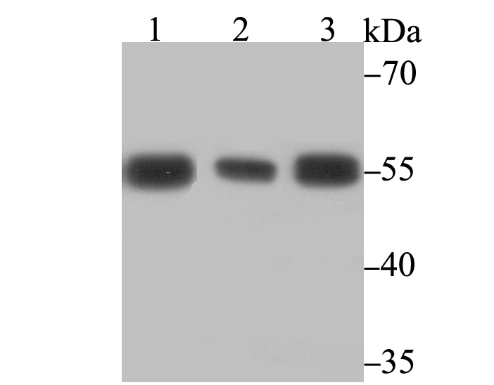 Western blot analysis of PTBP1 on different cell lysates using anti-PTBP1 antibody at 1/5,000 dilution.<br />  Positive control:<br />  Lane 1: Jurkat <br />  Lane 2: A431<br />  Lane 3: K562<br />