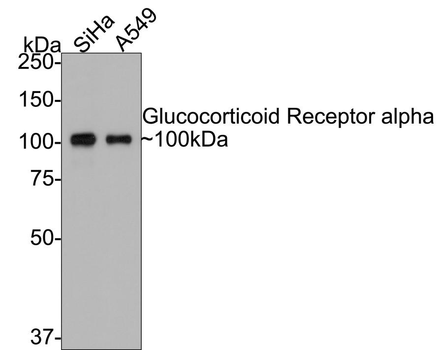 Western blot analysis of Glucocorticoid Receptor alpha on SiHa (1) and A549 (2) using anti-Glucocorticoid Receptor alpha antibody at 1/5,000 dilution.