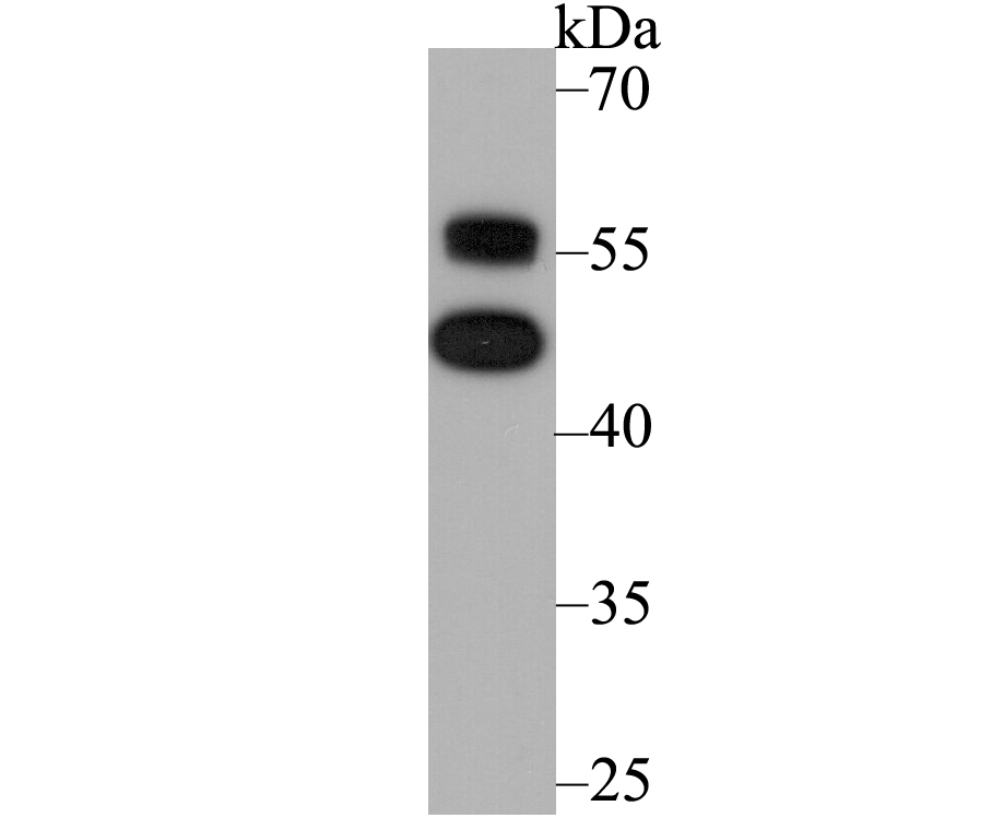 Western blot analysis of NFIB/NF1B2 on SH-SY5Y using anti-NFIB/NF1B2 antibody at 1/1,000 dilution.