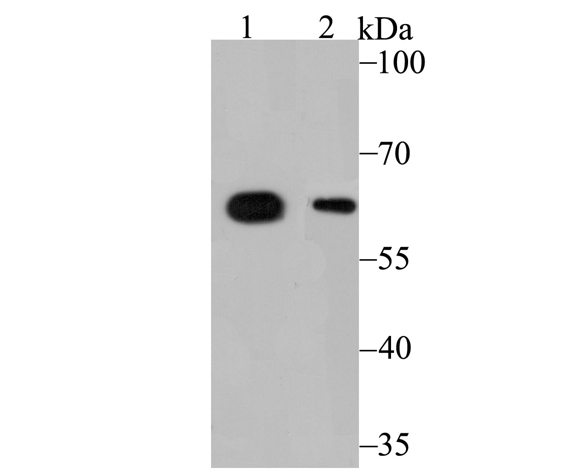 Western blot analysis of ALDH4A1 on SK-Br-3 (1) and HepG2 (2) cell lysate using anti-ALDH4A1 antibody at 1/1,000 dilution.