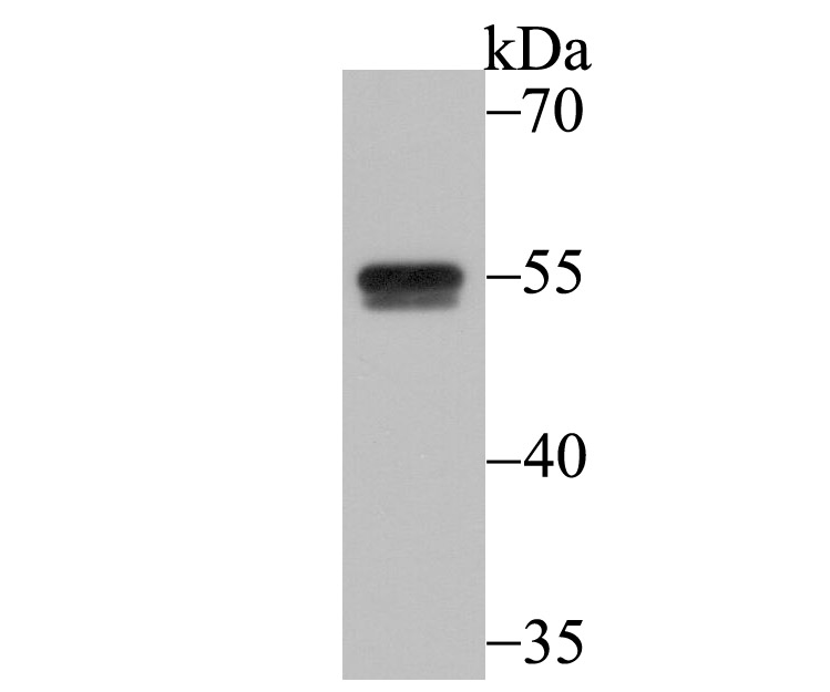 Western blot analysis of CELF1 on Daudi cell lysate using anti-CELF1 antibody at 1/5,000 dilution.