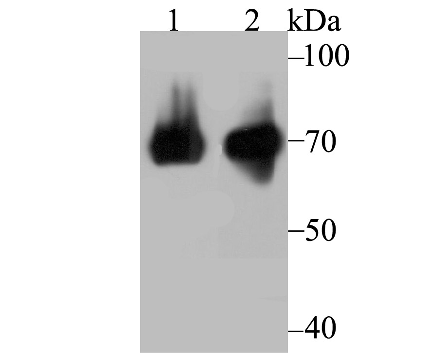 Western blot analysis of HSPA1L on A549 (1) and mouse testis (2) lysate using anti-HSPA1L antibody at 1/10,000 dilution.
