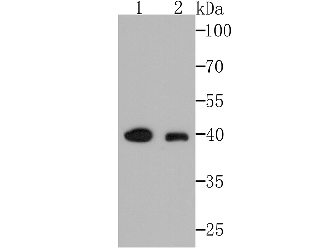 Western blot analysis of AMACR/P504S on different lysates. Proteins were transferred to a PVDF membrane and blocked with 5% BSA in PBS for 1 hour at room temperature. The primary antibody (EM1701-80, 1/500) was used in 5% BSA at room temperature for 2 hours. Goat Anti-Rabbit IgG - HRP Secondary Antibody (HA1001) at 1:200,000 dilution was used for 1 hour at room temperature.<br /> Positive control: <br /> Lane 1: SiHa cell lysate<br /> Lane 2: Human liver tissue lysate