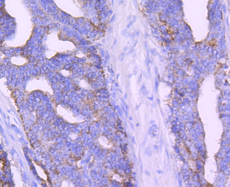 Immunohistochemical analysis of paraffin-embedded human prostate cancer tissue using anti- AMACR/P504S antibody. Counter stained with hematoxylin.