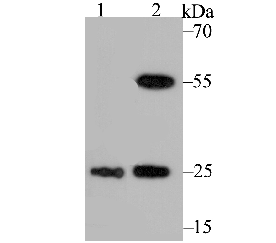 Western blot analysis of PGP9.5 on A172 (1) and SHG-44 (2) using anti-PGP9.5 antibody at 1/500 dilution.