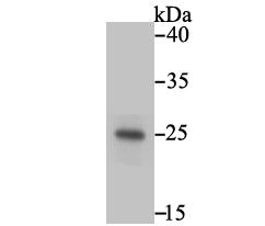 Western blot analysis of PLGF on JAR using anti-PLGF antibody at 1/500 dilution.