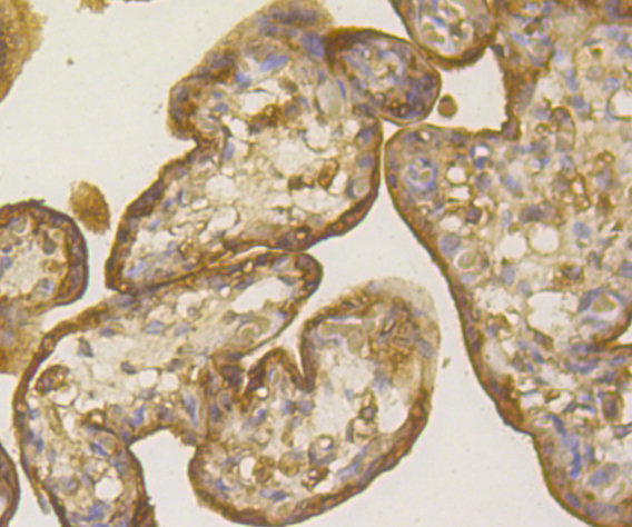 Immunohistochemical analysis of paraffin-embedded human placenta tissue using anti-PLGF antibody. Counter stained with hematoxylin.