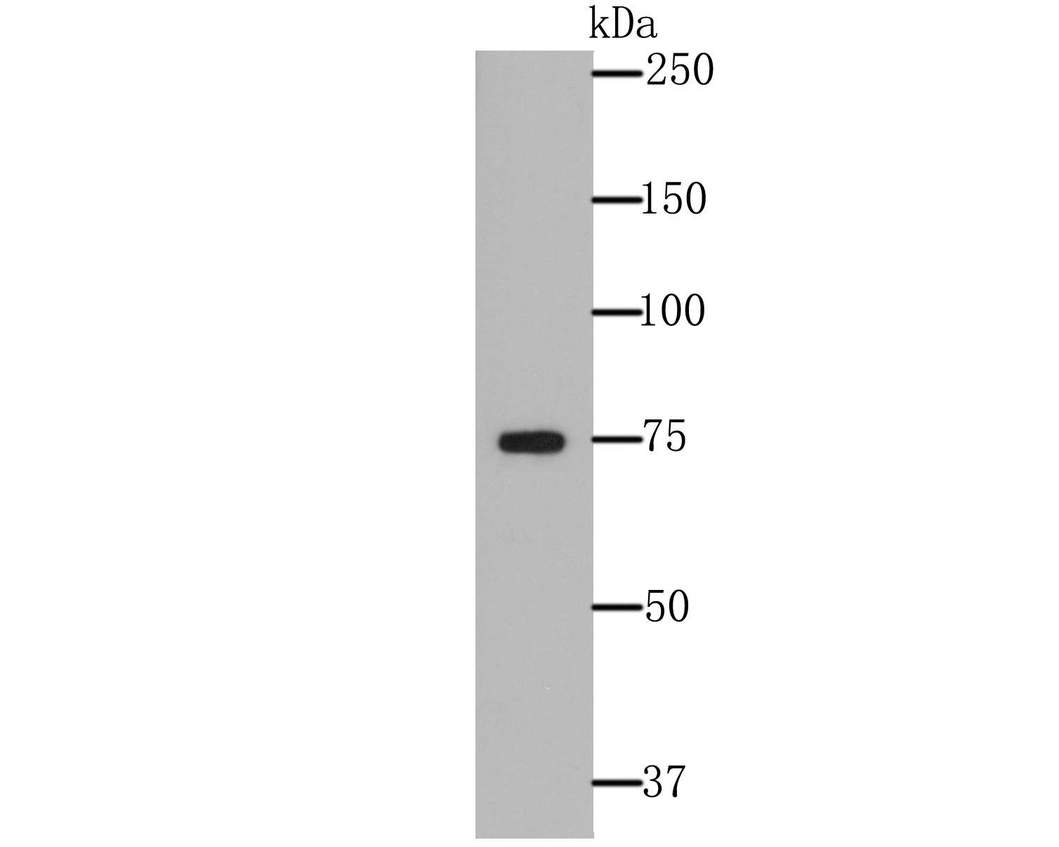 Western blot analysis of ERp72 on A431 cell lysate using anti-ERp72 antibody at 1/500 dilution.