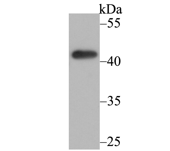 Western blot analysis of Osteoprotegerin on K562 cell lysate using anti-Osteoprotegerin antibody at 1/500 dilution.