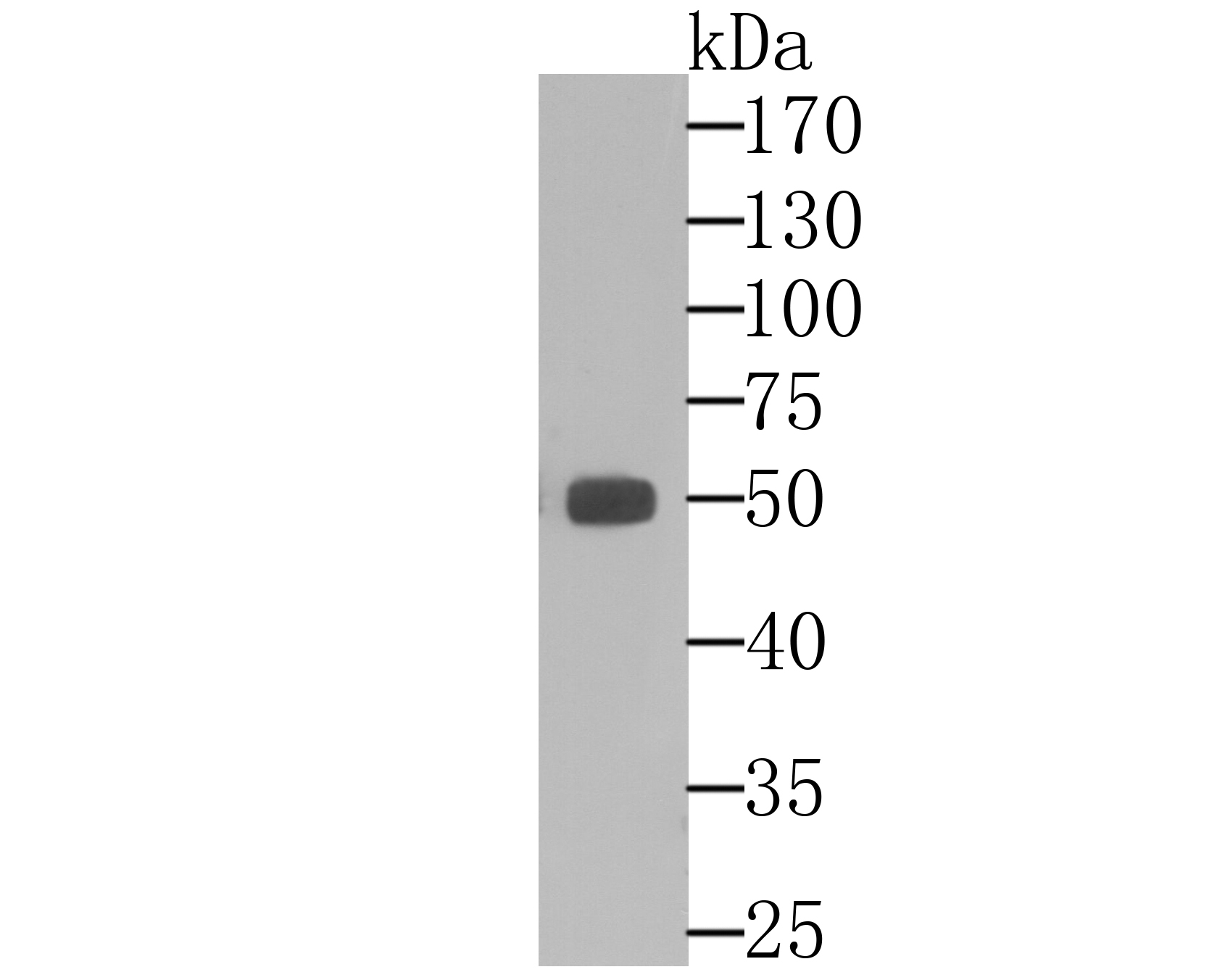 Western blot analysis of ALDH1A1 on human liver tissue lysate using anti-ALDH1A1 antibody at 1/10,000 dilution.
