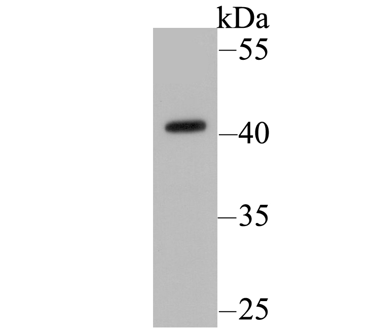 Western blot analysis of HLA Class 1 ABC on Hela cell lysate. Proteins were transferred to a PVDF membrane and blocked with 5% BSA in PBS for 1 hour at room temperature. The primary antibody was used at a 1:2,000 dilution in 5% BSA at room temperature for 2 hours. Goat Anti-Mouse IgG - HRP Secondary Antibody (HA1006) at 1:5,000 dilution was used for 1 hour at room temperature.