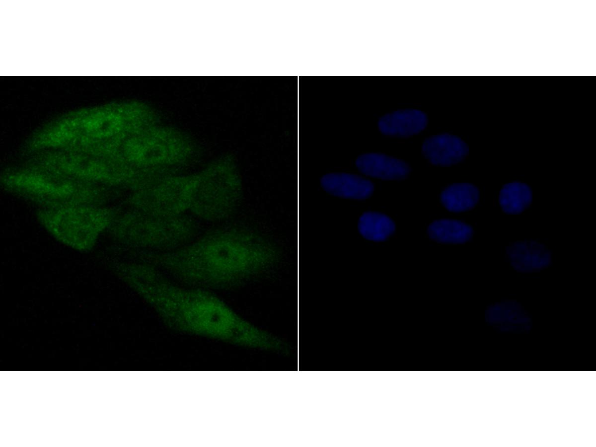 ICC staining APE1 in SiHa cells (green). Formalin fixed cells were permeabilized with 0.1% Triton X-100 in TBS for 10 minutes at room temperature and blocked with 1% Blocker BSA for 15 minutes at room temperature. Cells were probed with APE1 monoclonal antibody at a dilution of 1:50 for 1 hour at room temperature, washed with PBS. Alexa Fluorc™ 488 Goat anti-Mouse IgG was used as the secondary antibody at 1/100 dilution. The nuclear counter stain is DAPI (blue).