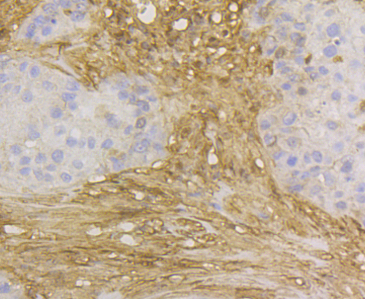 Immunohistochemical analysis of paraffin-embedded human breast cancer tissue using anti-GST3 antibody. The section was pre-treated using heat mediated antigen retrieval with Tris-EDTA buffer (pH 8.0-8.4) for 20 minutes.The tissues were blocked in 5% BSA for 30 minutes at room temperature, washed with ddH2O and PBS, and then probed with the antibody (EM1801-18) at 1/200 dilution, for 30 minutes at room temperature and detected using an HRP conjugated compact polymer system. DAB was used as the chrogen. Counter stained with hematoxylin and mounted with DPX.