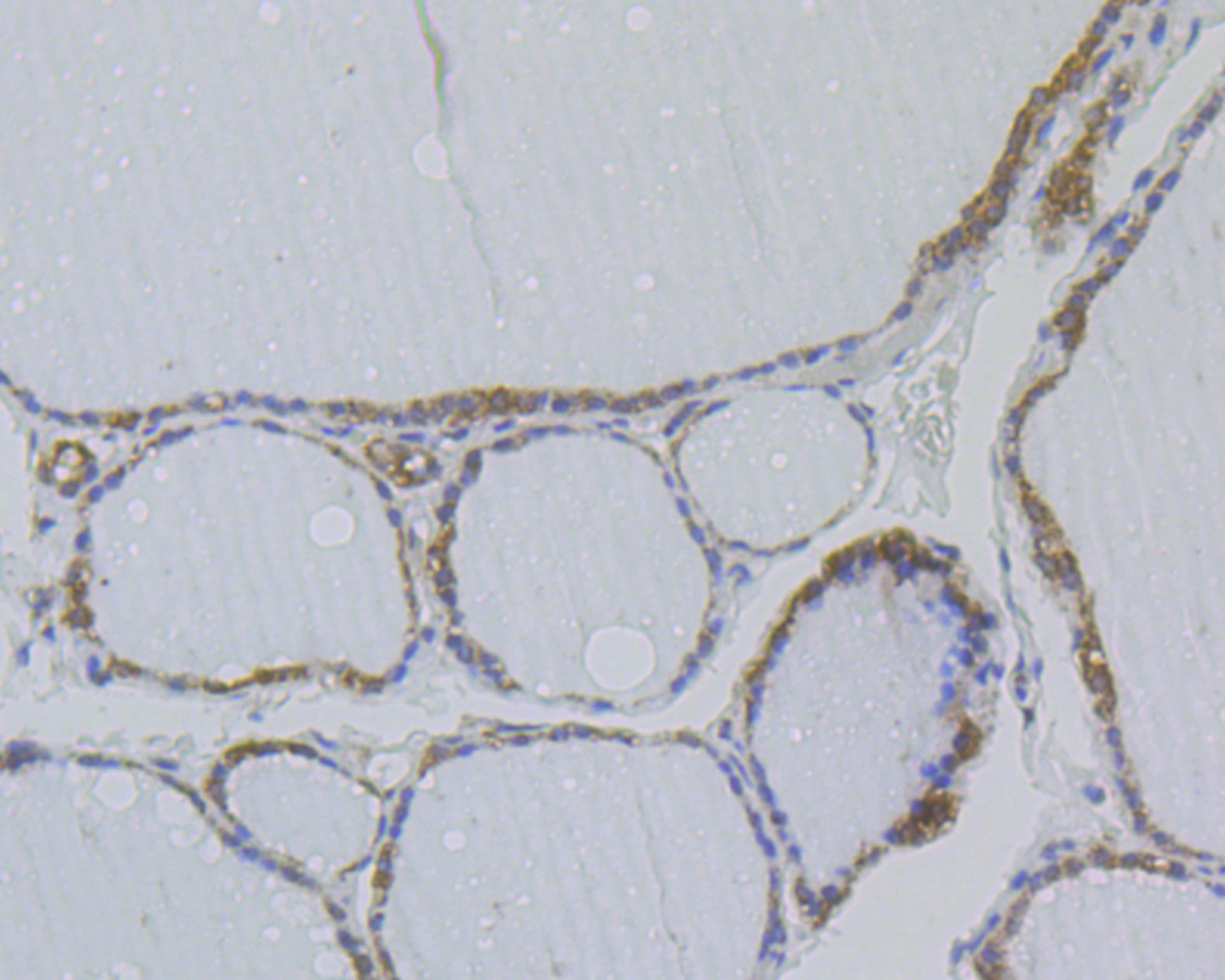 Immunohistochemical analysis of paraffin-embedded human thyroid gland tissue using anti-NM23 antibody. The section was pre-treated using heat mediated antigen retrieval with sodium citrate buffer (pH 6.0) for 20 minutes. The tissues were blocked in 5% BSA for 30 minutes at room temperature, washed with ddH2O and PBS, and then probed with the antibody (EM1801-20) at 1/200 dilution, for 30 minutes at room temperature and detected using an HRP conjugated compact polymer system. DAB was used as the chrogen. Counter stained with hematoxylin and mounted with DPX.