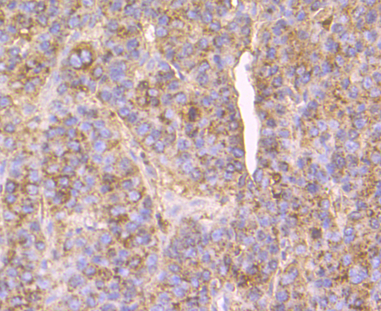 Immunohistochemical analysis of paraffin-embedded human liver cancer tissue using anti-Cathepsin D antibody. The section was pre-treated using heat mediated antigen retrieval with Tris-EDTA buffer (pH 8.0-8.4) for 20 minutes.The tissues were blocked in 5% BSA for 30 minutes at room temperature, washed with ddH2O and PBS, and then probed with the antibody (EM1901-02) at 1/200 dilution, for 30 minutes at room temperature and detected using an HRP conjugated compact polymer system. DAB was used as the chromogen. Counter stained with hematoxylin and mounted with DPX.