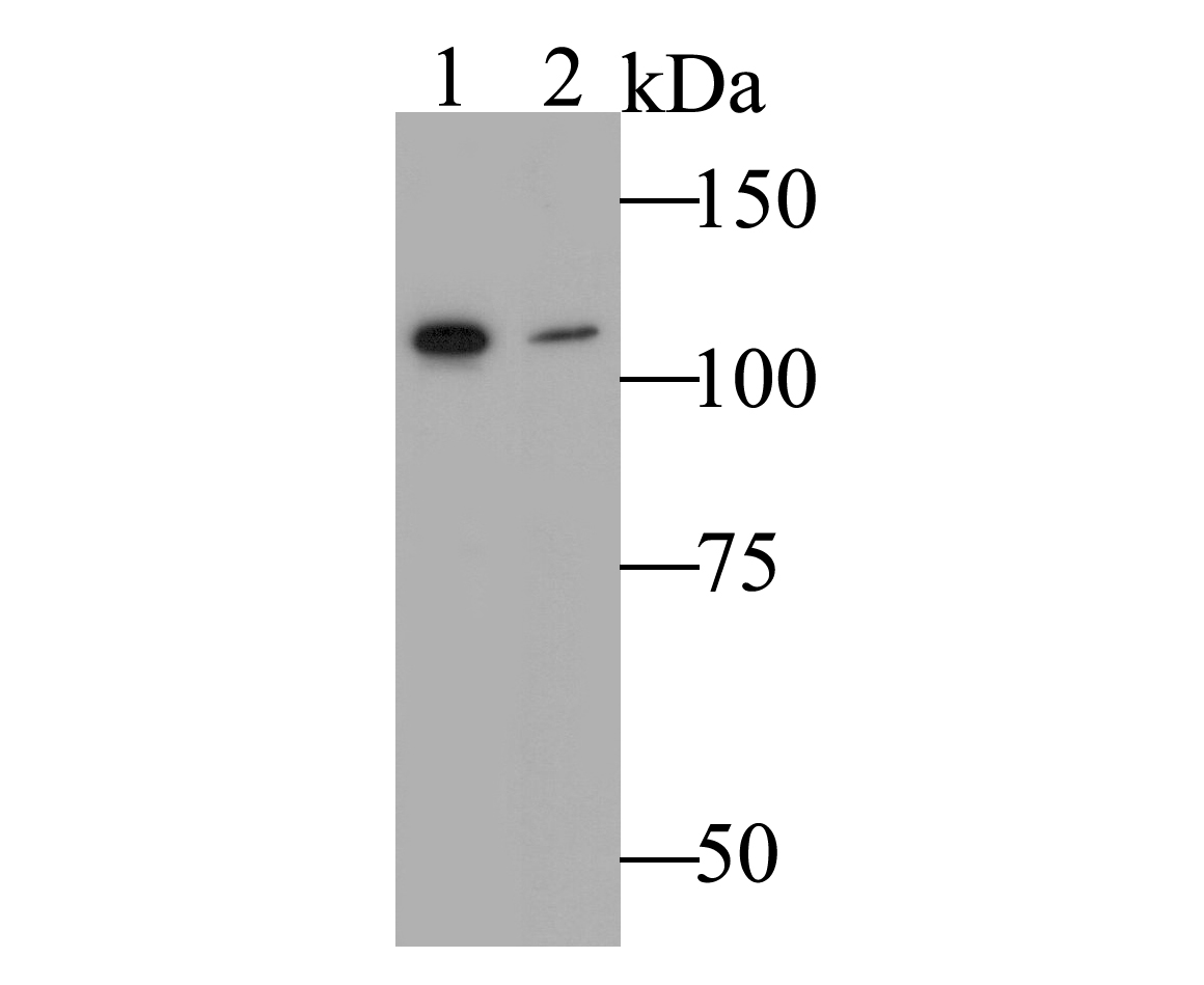 Western blot analysis of Hip1 on different lysates. Proteins were transferred to a PVDF membrane and blocked with 5% BSA in PBS for 1 hour at room temperature. The primary antibody was used at a 1:500 dilution in 5% BSA at room temperature for 2 hours. Goat Anti-Rabbit IgG - HRP Secondary Antibody (HA1001) at 1:5,000 dilution was used for 1 hour at room temperature.<br /> Positive control: <br /> Lane 1: SH-SY5Y cell lysate<br /> Lane 2: A549 cell lysate
