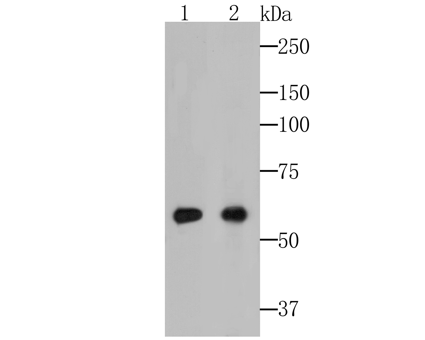 Western blot analysis of Cytokeratin 5+6 on different lysates. Proteins were transferred to a PVDF membrane and blocked with 5% BSA in PBS for 1 hour at room temperature. The primary antibody (EM1901-07, 1/100) was used in 5% BSA at room temperature for 2 hours. Goat Anti-Mouse IgG - HRP Secondary Antibody (HA1006) at 1:5,000 dilution was used for 1 hour at room temperature.<br />  Positive control: <br />  Lane 1: HT-29 cell lysate<br />  Lane 2: Human skin tissue lysate