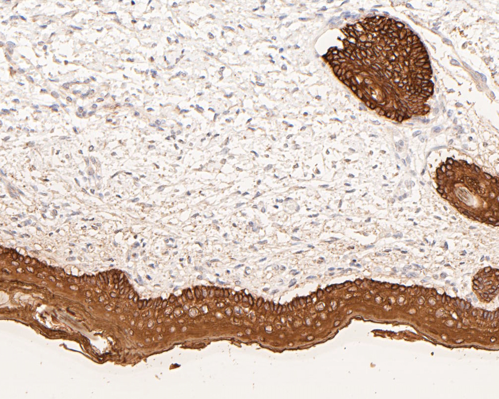 Immunohistochemical analysis of paraffin-embedded human skin tissue using anti-Cytokeratin 5+6 antibody. The section was pre-treated using heat mediated antigen retrieval with Tris-EDTA buffer (pH 8.0-8.4) for 20 minutes.The tissues were blocked in 5% BSA for 30 minutes at room temperature, washed with ddH2O and PBS, and then probed with the primary antibody (EM1901-07, 1/200) for 30 minutes at room temperature. The detection was performed using an HRP conjugated compact polymer system. DAB was used as the chromogen. Tissues were counterstained with hematoxylin and mounted with DPX.