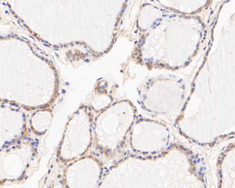Immunohistochemical analysis of paraffin-embedded human thyroid tissue using anti-NM23 antibody. The section was pre-treated using heat mediated antigen retrieval with Tris-EDTA buffer (pH 8.0-8.4) for 20 minutes.The tissues were blocked in 5% BSA for 30 minutes at room temperature, washed with ddH2O and PBS, and then probed with the primary antibody (EM1901-09, 1/50) for 30 minutes at room temperature. The detection was performed using an HRP conjugated compact polymer system. DAB was used as the chromogen. Tissues were counterstained with hematoxylin and mounted with DPX.