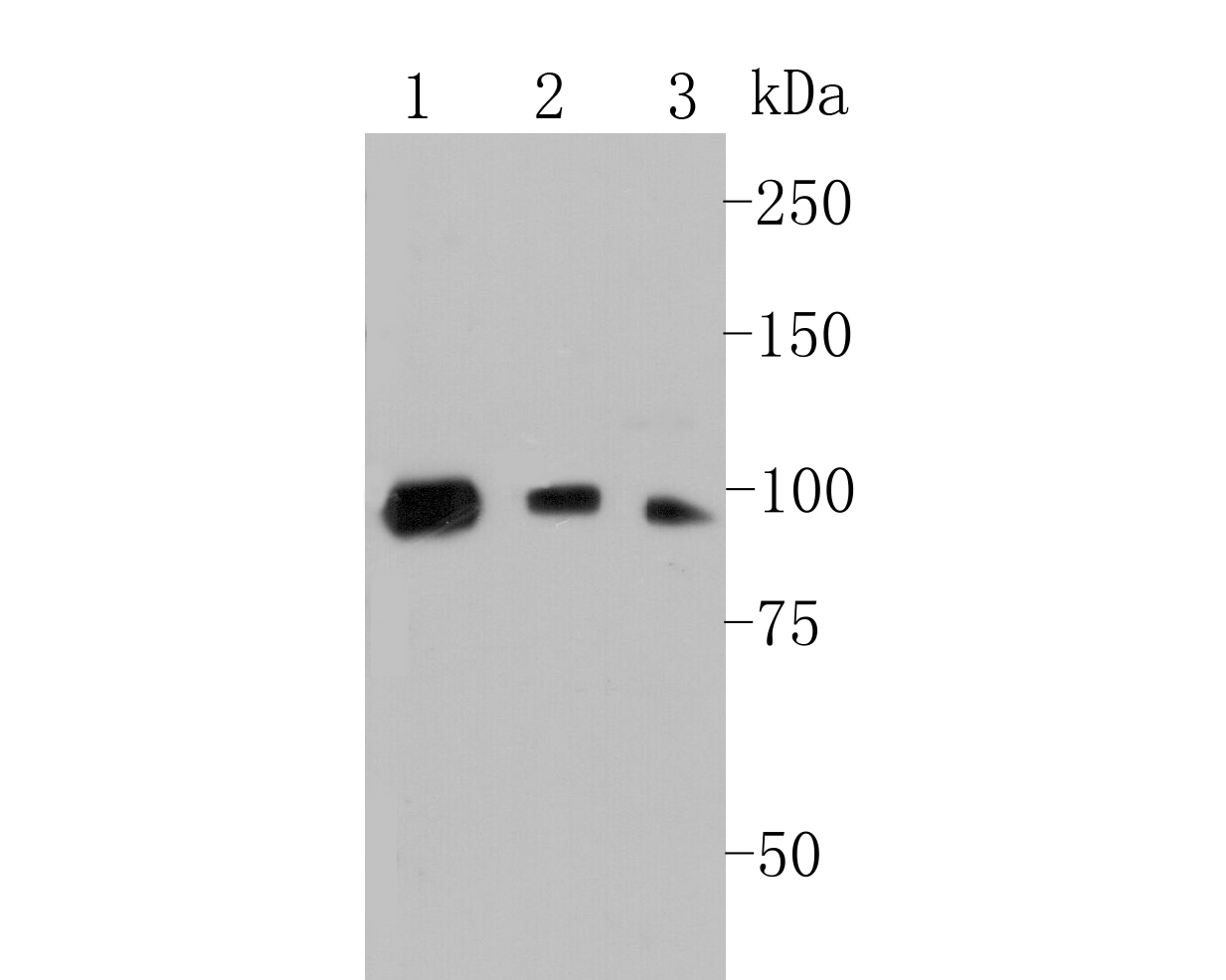 Western blot analysis of C7 on different lysates. Proteins were transferred to a PVDF membrane and blocked with 5% BSA in PBS for 1 hour at room temperature. The primary antibody (EM1901-14, 1/500) was used in 5% BSA at room temperature for 2 hours. Goat Anti-Mouse IgG - HRP Secondary Antibody (HA1006) at 1:5,000 dilution was used for 1 hour at room temperature.<br /> Positive control: <br /> Lane 1: HepG2 cell lysate<br /> Lane 2: K562 cell lysate<br /> Lane 3: HUVEC cell lysate