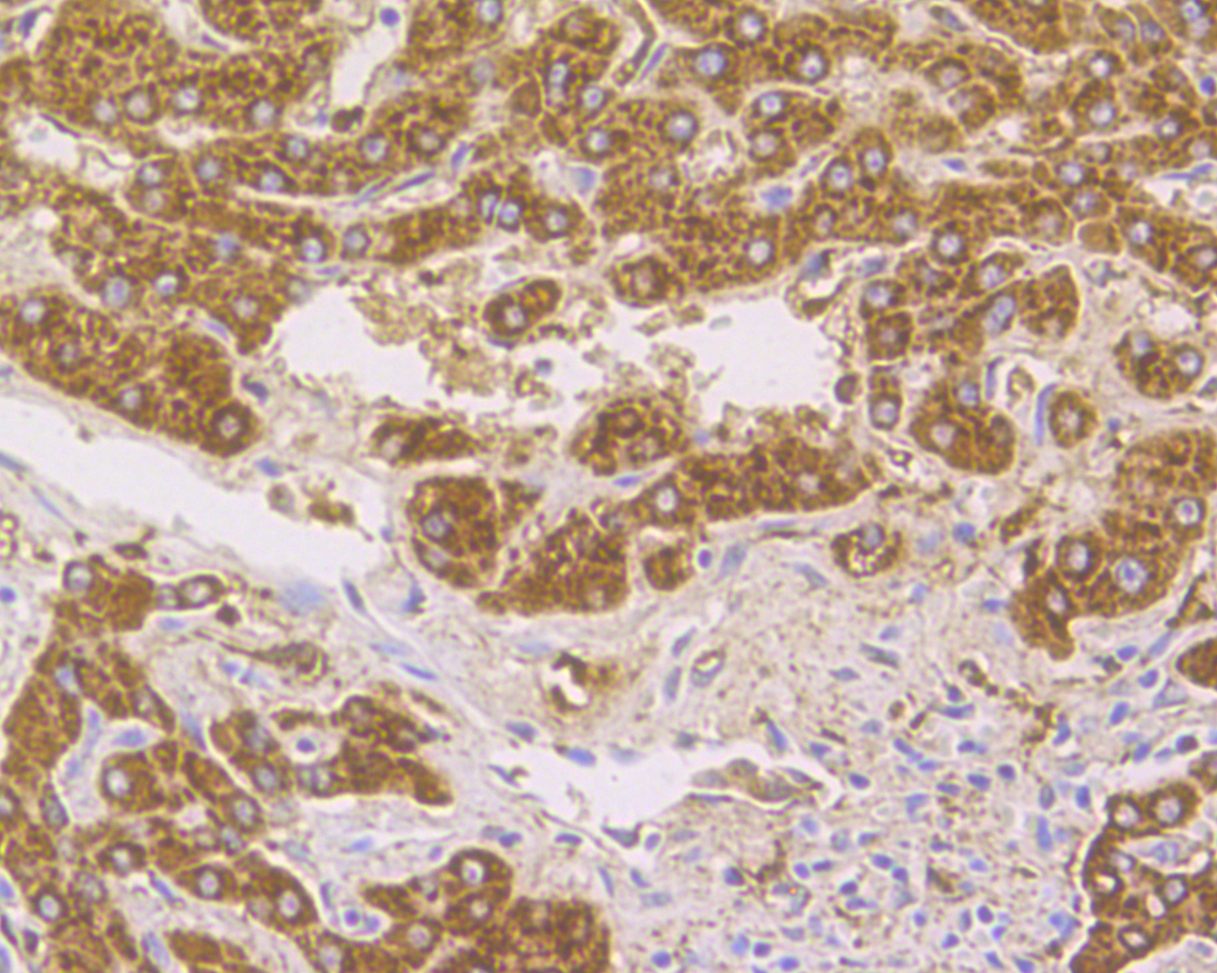 Immunohistochemical analysis of paraffin-embedded human liver tissue using anti-Cathepsin D antibody. The section was pre-treated using heat mediated antigen retrieval with Tris-EDTA buffer (pH 8.0-8.4) for 20 minutes.The tissues were blocked in 5% BSA for 30 minutes at room temperature, washed with ddH2O and PBS, and then probed with the primary antibody (EM1901-17, 1/50) for 30 minutes at room temperature. The detection was performed using an HRP conjugated compact polymer system. DAB was used as the chromogen. Tissues were counterstained with hematoxylin and mounted with DPX.