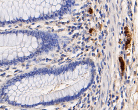 Immunohistochemical analysis of paraffin-embedded human colon tissue using anti-Myeloperoxidase antibody. The section was pre-treated using heat mediated antigen retrieval with Tris-EDTA buffer (pH 8.0-8.4) for 20 minutes.The tissues were blocked in 5% BSA for 30 minutes at room temperature, washed with ddH2O and PBS, and then probed with the primary antibody (EM1901-21, 1/50) for 30 minutes at room temperature. The detection was performed using an HRP conjugated compact polymer system. DAB was used as the chromogen. Tissues were counterstained with hematoxylin and mounted with DPX.