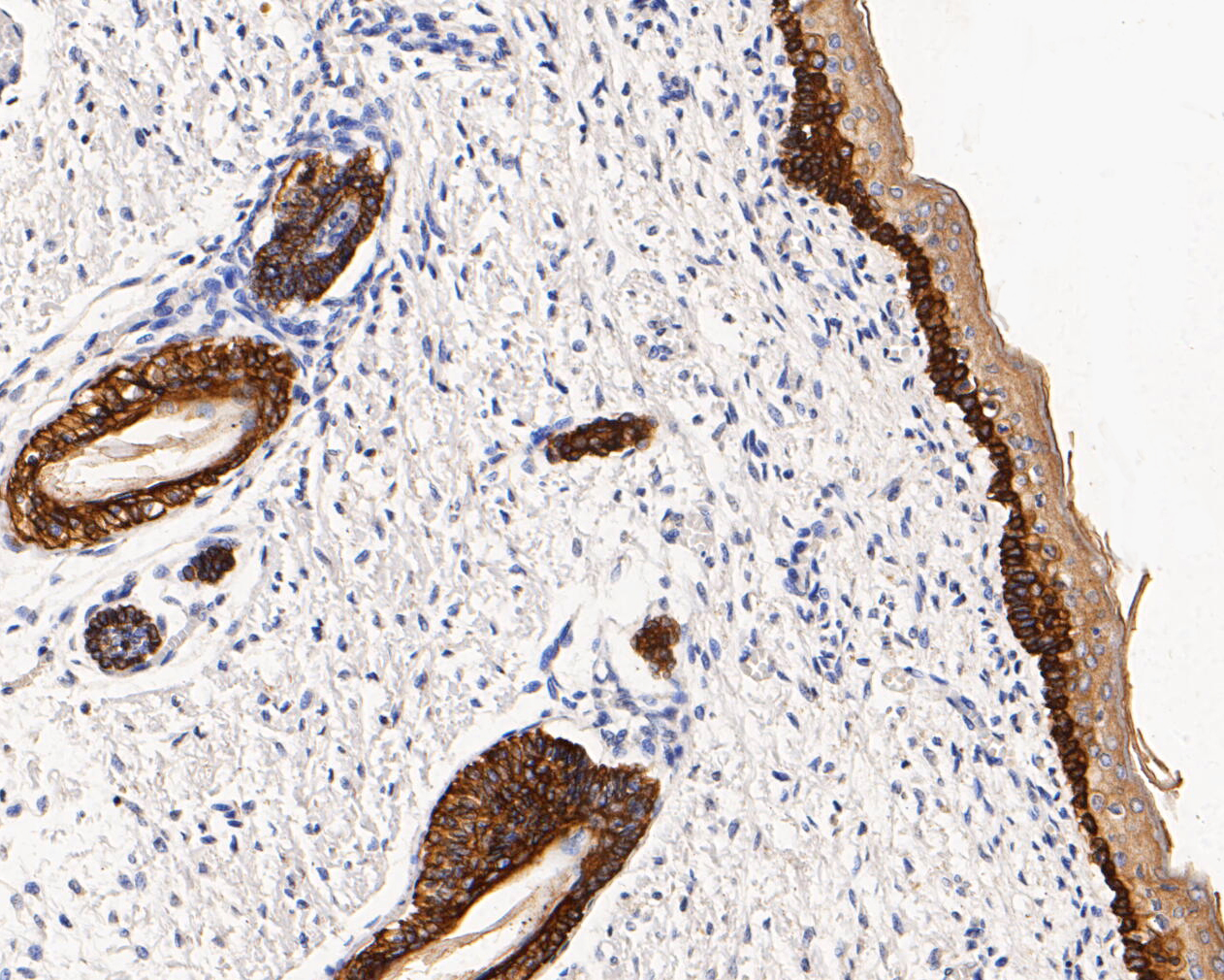 Immunohistochemical analysis of paraffin-embedded human skin tissue using anti-Cytokeratin 14 antibody. The section was pre-treated using heat mediated antigen retrieval with Tris-EDTA buffer (pH 8.0-8.4) for 20 minutes.The tissues were blocked in 5% BSA for 30 minutes at room temperature, washed with ddH2O and PBS, and then probed with the primary antibody (, 1/200) for 30 minutes at room temperature. The detection was performed using an HRP conjugated compact polymer system. DAB was used as the chromogen. Tissues were counterstained with hematoxylin and mounted with DPX.