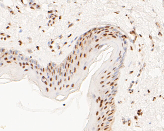 Immunohistochemical analysis of paraffin-embedded human skin tissue using anti-MTA2 antibody. The section was pre-treated using heat mediated antigen retrieval with sodium citrate buffer (pH 6.0) for 20 minutes. The tissues were blocked in 5% BSA for 30 minutes at room temperature, washed with ddH2O and PBS, and then probed with the primary antibody (EM1901-34, 1/500)  for 30 minutes at room temperature. The detection was performed using an HRP conjugated compact polymer system. DAB was used as the chromogen. Tissues were counterstained with hematoxylin and mounted with DPX.