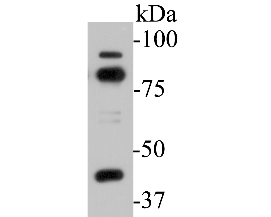 Western blot analysis of SPATIAL on K562 cell lysates. Proteins were transferred to a PVDF membrane and blocked with 5% BSA in PBS for 1 hour at room temperature. The primary antibody (EM1901-35, 1/500) was used in 5% BSA at room temperature for 2 hours. Goat Anti-Rabbit IgG - HRP Secondary Antibody (HA1006) at 1:5,000 dilution was used for 1 hour at room temperature.