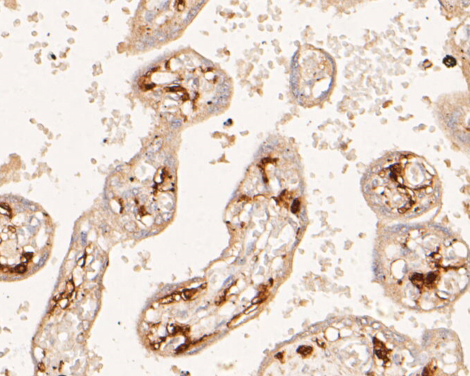 Immunohistochemical analysis of paraffin-embedded human placenta tissue using anti-F13A1 antibody. The section was pre-treated using heat mediated antigen retrieval with Tris-EDTA buffer (pH 8.0-8.4) for 20 minutes.The tissues were blocked in 5% BSA for 30 minutes at room temperature, washed with ddH2O and PBS, and then probed with the primary antibody (EM1901-38, 1/800) for 30 minutes at room temperature. The detection was performed using an HRP conjugated compact polymer system. DAB was used as the chromogen. Tissues were counterstained with hematoxylin and mounted with DPX.