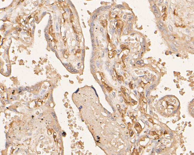 Immunohistochemical analysis of paraffin-embedded human placenta tissue using anti-F13A1 antibody. The section was pre-treated using heat mediated antigen retrieval with Tris-EDTA buffer (pH 8.0-8.4) for 20 minutes.The tissues were blocked in 5% BSA for 30 minutes at room temperature, washed with ddH2O and PBS, and then probed with the primary antibody (EM1901-39, 1/800) for 30 minutes at room temperature. The detection was performed using an HRP conjugated compact polymer system. DAB was used as the chromogen. Tissues were counterstained with hematoxylin and mounted with DPX.