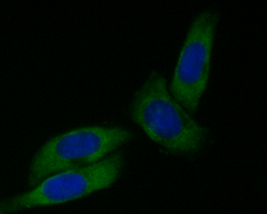 ICC staining of Dynamin 1 in SiHa cells (green). Formalin fixed cells were permeabilized with 0.1% Triton X-100 in TBS for 10 minutes at room temperature and blocked with 1% Blocker BSA for 15 minutes at room temperature. Cells were probed with the primary antibody (EM1901-44, 1/50) for 1 hour at room temperature, washed with PBS. Alexa Fluor®488 Goat anti-Mouse IgG was used as the secondary antibody at 1/1,000 dilution. The nuclear counter stain is DAPI (blue).