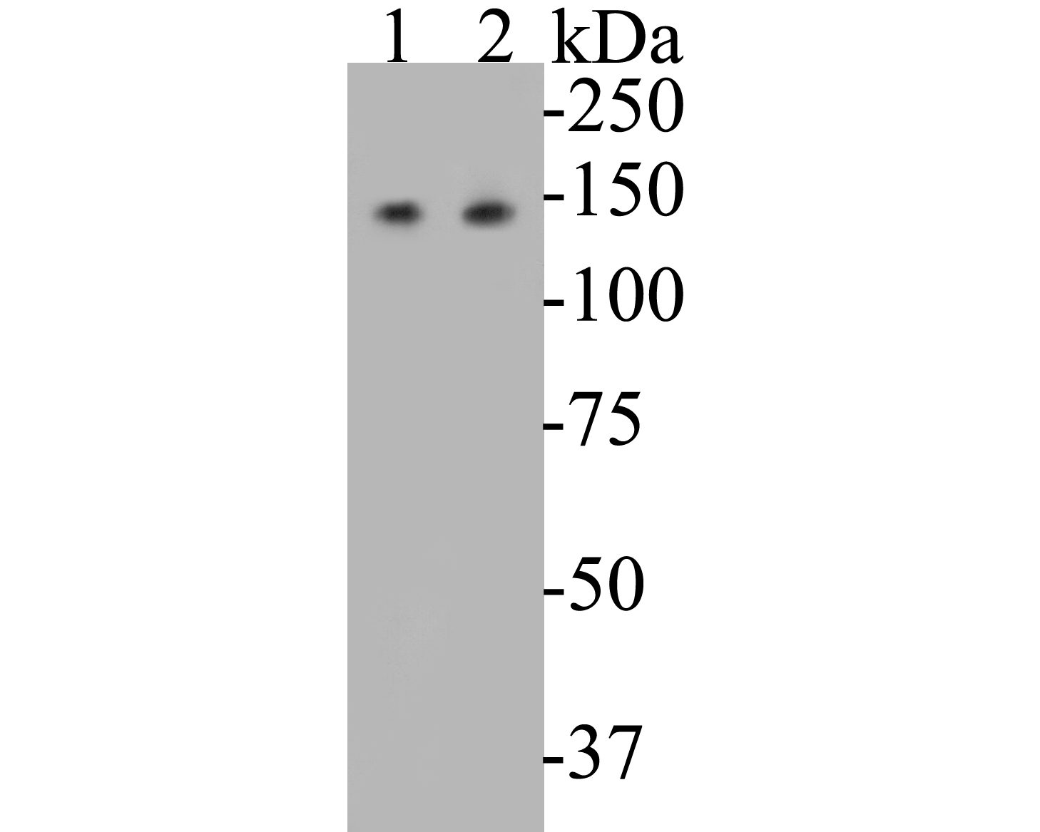 Western blot analysis of USP28 on different lysates. Proteins were transferred to a PVDF membrane and blocked with 5% BSA in PBS for 1 hour at room temperature. The primary antibody (EM1901-46, 1/500) was used in 5% BSA at room temperature for 2 hours. Goat Anti-Mouse IgG - HRP Secondary Antibody (HA1006) at 1:5,000 dilution was used for 1 hour at room temperature.<br />  Positive control: <br />  Lane 1: K562 cell lysate<br />  Lane 2: A549 cell lysate