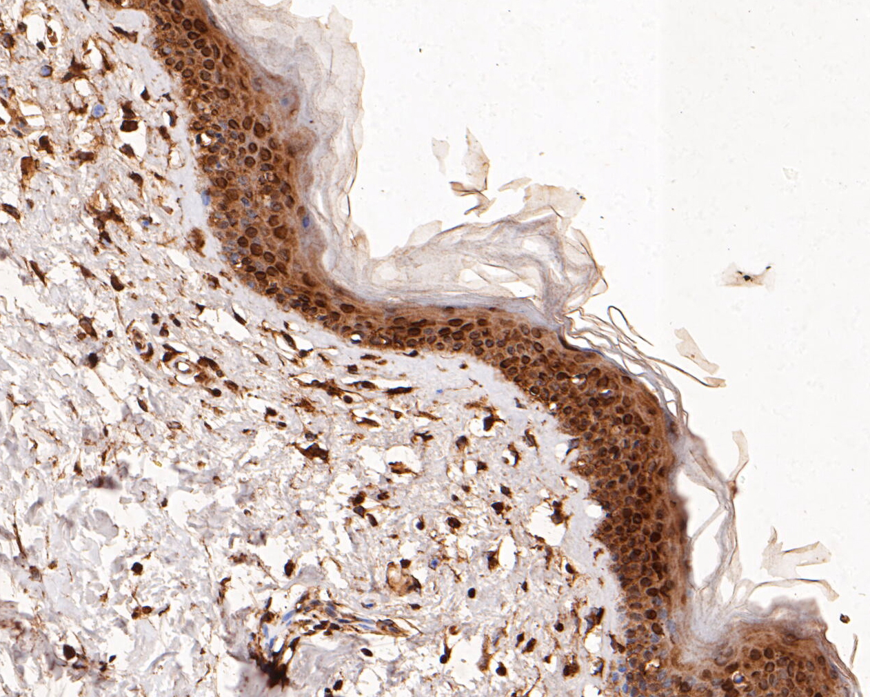 Immunohistochemical analysis of paraffin-embedded human skin tissue using anti-ERK2 antibody. The section was pre-treated using heat mediated antigen retrieval with sodium citrate buffer (pH 6.0) for 20 minutes. The tissues were blocked in 5% BSA for 30 minutes at room temperature, washed with ddH2O and PBS, and then probed with the primary antibody (EM1901-53, 1/100)  for 30 minutes at room temperature. The detection was performed using an HRP conjugated compact polymer system. DAB was used as the chromogen. Tissues were counterstained with hematoxylin and mounted with DPX.