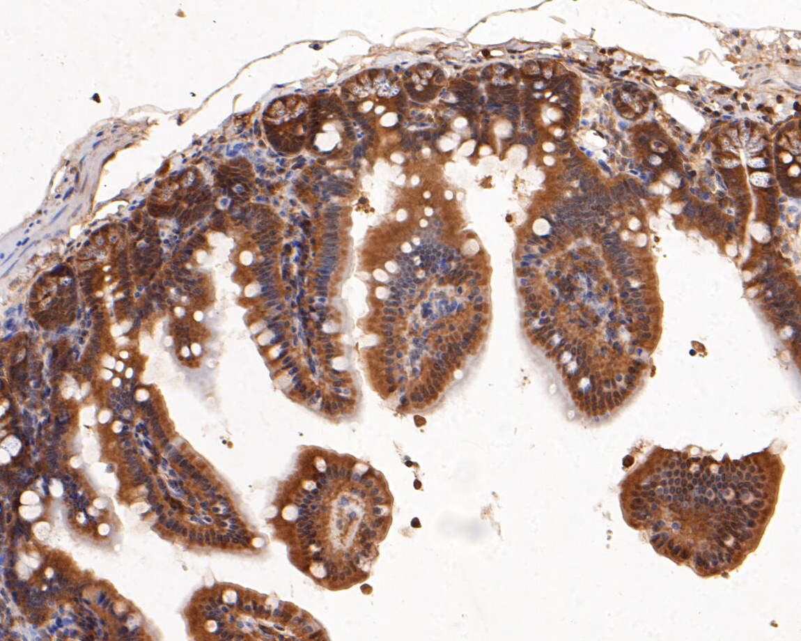 Immunohistochemical analysis of paraffin-embedded mouse colon tissue using anti-ERK2 antibody. The section was pre-treated using heat mediated antigen retrieval with sodium citrate buffer (pH 6.0) for 20 minutes. The tissues were blocked in 5% BSA for 30 minutes at room temperature, washed with ddH2O and PBS, and then probed with the primary antibody (EM1901-53, 1/100)  for 30 minutes at room temperature. The detection was performed using an HRP conjugated compact polymer system. DAB was used as the chromogen. Tissues were counterstained with hematoxylin and mounted with DPX.
