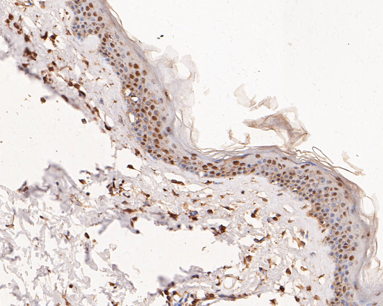 Immunohistochemical analysis of paraffin-embedded human skin tissue using anti-ERK2 antibody. The section was pre-treated using heat mediated antigen retrieval with sodium citrate buffer (pH 6.0) for 20 minutes. The tissues were blocked in 5% BSA for 30 minutes at room temperature, washed with ddH2O and PBS, and then probed with the primary antibody (EM1901-54, 1/100) for 30 minutes at room temperature. The detection was performed using an HRP conjugated compact polymer system. DAB was used as the chromogen. Tissues were counterstained with hematoxylin and mounted with DPX.