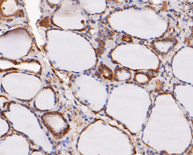 Immunohistochemical analysis of paraffin-embedded human thyroid tissue using anti-ERK2 antibody. The section was pre-treated using heat mediated antigen retrieval with sodium citrate buffer (pH 6.0) for 20 minutes. The tissues were blocked in 5% BSA for 30 minutes at room temperature, washed with ddH2O and PBS, and then probed with the primary antibody (EM1901-55, 1/100) for 30 minutes at room temperature. The detection was performed using an HRP conjugated compact polymer system. DAB was used as the chromogen. Tissues were counterstained with hematoxylin and mounted with DPX.