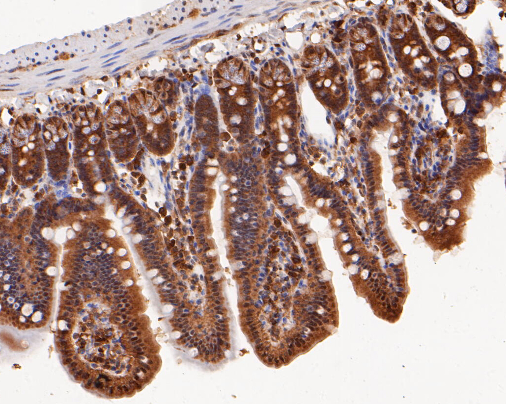 Immunohistochemical analysis of paraffin-embedded mouse colon tissue using anti-ERK2 antibody. The section was pre-treated using heat mediated antigen retrieval with sodium citrate buffer (pH 6.0) for 20 minutes. The tissues were blocked in 5% BSA for 30 minutes at room temperature, washed with ddH2O and PBS, and then probed with the primary antibody (EM1901-55, 1/100) for 30 minutes at room temperature. The detection was performed using an HRP conjugated compact polymer system. DAB was used as the chromogen. Tissues were counterstained with hematoxylin and mounted with DPX.