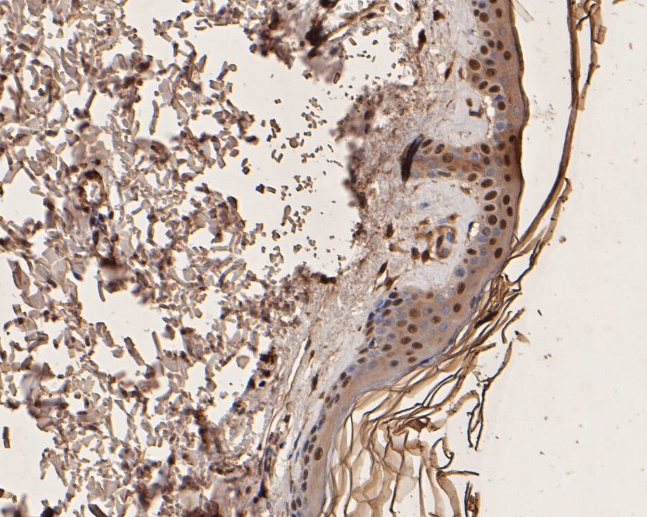 Immunohistochemical analysis of paraffin-embedded human skin tissue using anti-UBA3 antibody. The section was pre-treated using heat mediated antigen retrieval with sodium citrate buffer (pH 6.0) for 20 minutes. The tissues were blocked in 5% BSA for 30 minutes at room temperature, washed with ddH2O and PBS, and then probed with the primary antibody (EM1901-66, 1/200) for 30 minutes at room temperature. The detection was performed using an HRP conjugated compact polymer system. DAB was used as the chromogen. Tissues were counterstained with hematoxylin and mounted with DPX.