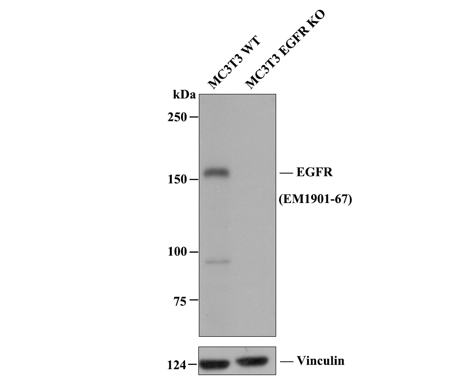 Western blot analysis of EGFR on different lysates. Proteins were transferred to a PVDF membrane and blocked with 5% BSA in PBS for 1 hour at room temperature. The primary antibody (EM1901-67, 1/500) was used in 5% BSA at room temperature for 2 hours. Goat Anti-Mouse IgG - HRP Secondary Antibody (HA1006) at 1:5,000 dilution was used for 1 hour at room temperature.<br />  Positive control: <br />  Lane 1: A431 cell lysate<br />  Lane 2: SKOV-3 cell lysate<br />  Lane 3: A549 cell lysate